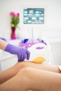 zabieg depliacji laserowej nóg