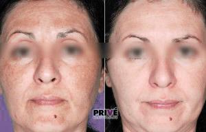 fotoodmładzanie całej twarzy