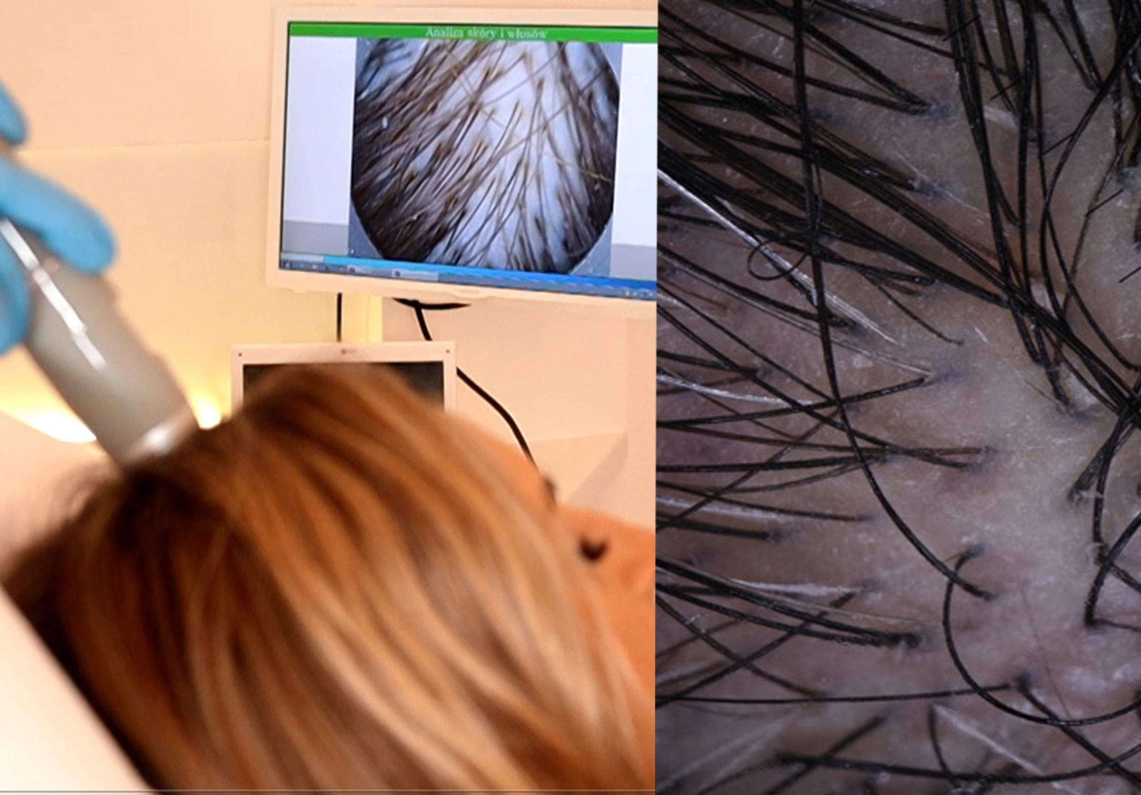 leczenie wypadania włosów u mężczyzn gdansk, leczenie wypadania włosów gdańsk gdansk, leczenie wypadania wlosow gdynia gdansk, leczenie wypadania wlosow gdansk gdansk, leczenie wypadania włosów osoczem gdansk, leczenie wypadania wlosow gdansk, leczenie wypadania włosów u kobiet gdansk, leczenie wypadanie wlosow gdansk, dr cyj hair filler skład gdansk, dr cyj hair filler opinie gdansk, dr cyj hair filler efekty gdansk, dr cyj hair filler cena gdansk, dr cyj hair filler zabieg gdansk, dr cyj hair filler gdansk, dr cyj czy osocze bogatopłytkowe gdansk, dr.cyj hair filler cena zabiegu gdansk, dr cyj hair filler skutki uboczne gdansk, dr cyj ampułki opinie gdansk, osocze bogatopłytkowe efekty po 1 zabiegu gdansk, osocze bogatopłytkowe na włosy gdansk, osocze bogatopłytkowe efekty włosy gdansk, osocze bogatopłytkowe pod oczy gdansk, osocze bogatoplytkowe gdansk,