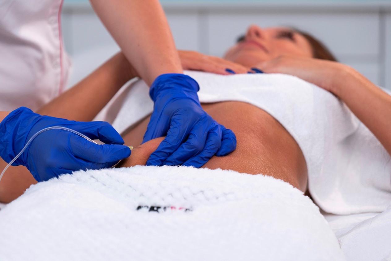 KARBOKSYTERAPIA wykonywanana na brzuchu pacjenki w Gdańsku i Sopocie w salonie Kosmetologicznym PRIVE Gdańsk
