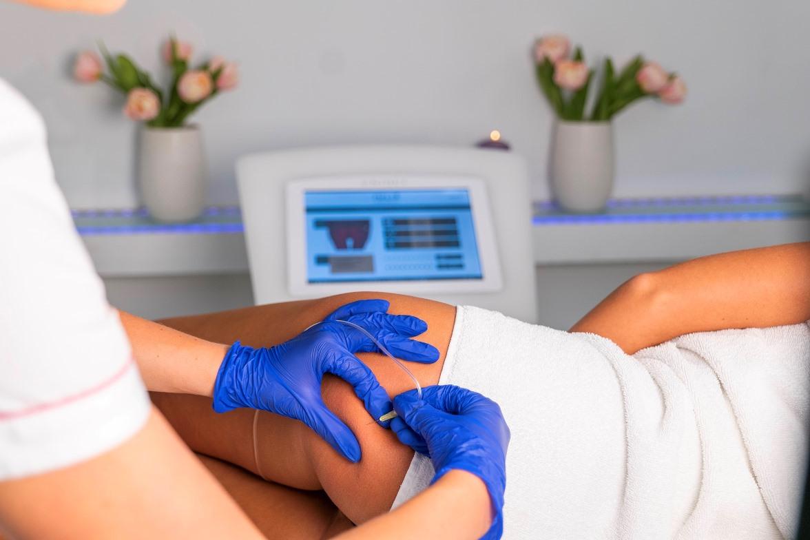 KARBOKSYTERAPIA wykonywanana na pośladkach pacjenki w Gdańsku i Sopocie w salonie Kosmetologicznym PRIVE Gdańsk,karboksyterapia,karboksyterapii,karboksyterapię,karboksyterapia pod oczy,karboksyterapia cena,karboksyterapia oczy,karboksyterapia twarz,karboksyterapia brzuch,karboksyterapia rozstępy,karboksyterapia rozstepy,karboksyterapia na twarz,karboksyterapia włosy,karboksyterapia cellulit,karboksyterapia skory glowy,zabieg karboksyterapii,karboksyterapia na rozstępy,karboksyterapia podbródek,karboksyterapia na rozstepy,karboksyterapia na brzuch,karboksyterapia na stare rozstępy,karboksyterapia na włosy,karboksyterapia na cellulit,karboksyterapia cienie pod oczami,karboksyterapia uda,karboksyterapia pod oczy po zabiegu,karboksyterapia gdańsk,karboksyterapia cena zabiegu,karboksyterapia na czym polega,karboksyterapia na blizny,karboksyterapia blizny,karboksyterapia pod oczy cena,karboksyterapia brzuch cena,karboksyterapia na cienie pod oczami,