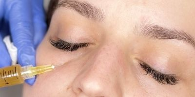 mezoterapia mikroigowa pod oczy opinie, mezoterapia igowa pod oczy kiedy efekty,mezoterapia igowa pod oczy cena,mezoterapia igowa efekty, mezoterapia pod oczy przed i po,mezoterapia pod oczy gdańsk