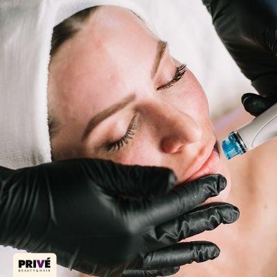 oczyszczanie wodorowe gdańsk, oczyszczanie wodorowe gdansk, wodorowe oczyszczanie twarzy gdańsk, ,
